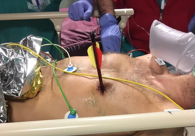 'Exceptional' heart op in Turin hospital (ANSA)